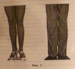 Расположение ног по первой позиции